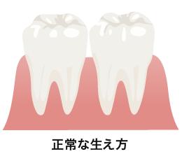 の 後 が 痛い 他 親知らず 歯 抜歯